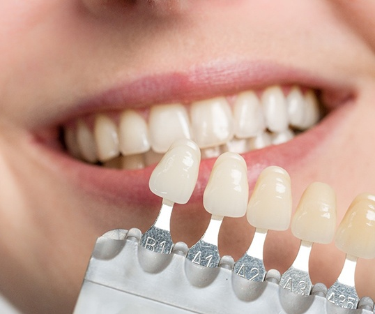 Some veneers being held up to a person's teeth